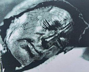 Eine 2400 Jahre alte Moorleiche aus Schweden. Auch im Schwarzen Moor fand man bereits eine Leiche, da es aber weitgehend unberührt ist, sind der morbiden Fantasie keine Grenzen gesetzt.
